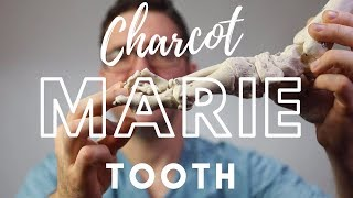 Charcot Marie Tooth (CMT) Information and Treatment.
