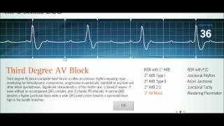 Easy EKG: Interpreting Rhythms