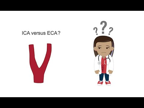 Download Distinguishing the ICA from the ECA with ultrasound