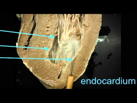 AP2 HEART ANATOMY QUIZ: ENDOCARDIUM.avi