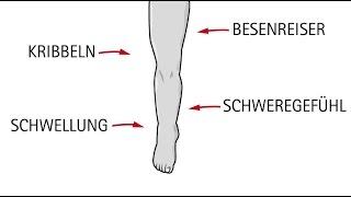 Schwere Beine - Hilfe bei Venenbeschwerden(, 2016-03-18T12:11:55.000Z)
