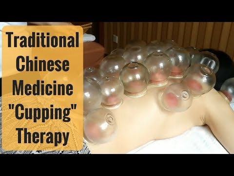 Traditional Chinese Medicine - Cupping Treatment