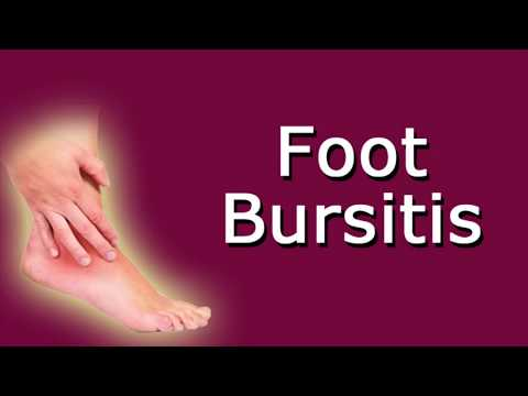 Foot Bursitis   Causes And Symptoms