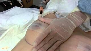 Repeat youtube video 豊胸(脂肪吸引+脂肪注入)名倉@湘南美容外科 Liposuction Japan