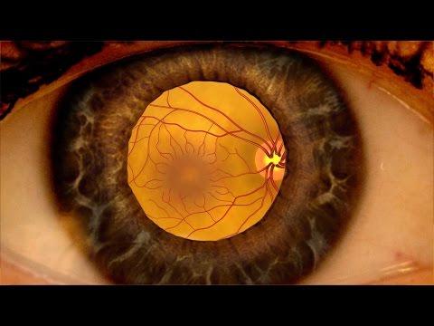 Animation: Detecting diabetic retinopathy through a dilated eye exam