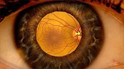 hqdefault - How Does Diabetes Mellitus Affect The Eyes