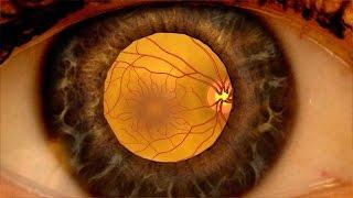 Animation: Erkennung einer diabetischen Retinopathie durch eine geweitete Augenuntersuchung