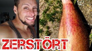 Schienbein zerstört im Training | DAVID RUESSEL