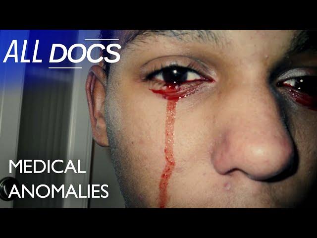 The Boy with Bloody Tears - Calvino Inman | Extraordinary People Documentary | Documental