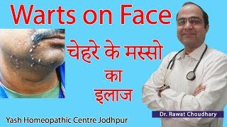 Warts on Face | मस्सो का इलाज | Best Treatment of Warts | Best Homeopathic Doctor in India