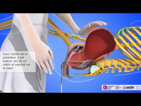 Accouchement: coupe du cordon et décollement du placenta (délivrance artificielle révision utérine)