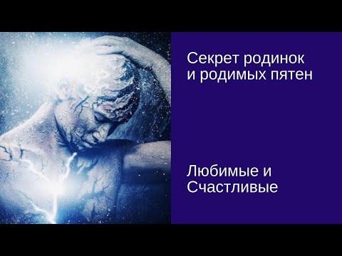 Секрет родимых пятен и родинок на Вашем теле/Сава Барс [#YouTube_здоровье)