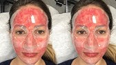 Acne Treatment - Fractionated Laser & Light Therapy | UCLA
