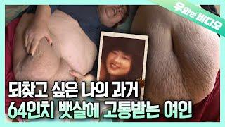 몸무게 160kg 허리 64인치, 흘러넘치는 뱃살에 고통받는 여인┃160kg (352lbs) Woman Suffers Due to Her Drooping Stomach