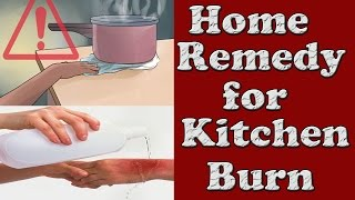Home remedy for Kitchen Burn   How to treat Minor Burn   Preventing and Treating Burns