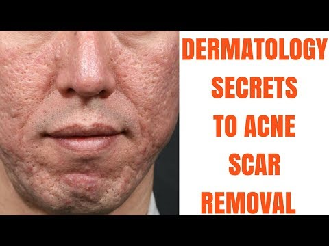 Acne scar treatments- ULTIMATE GUIDE