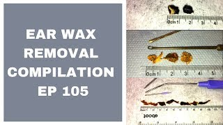 EAR WAX REMOVAL COMPILATION   EP 105