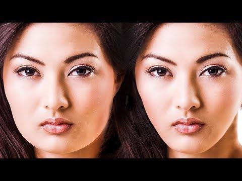 Wangen vor und nach dem Abnehmen operiert