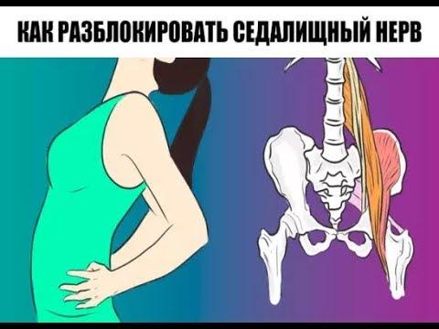 Защемление нерва. Лечение защемления нерва. Симптомы и