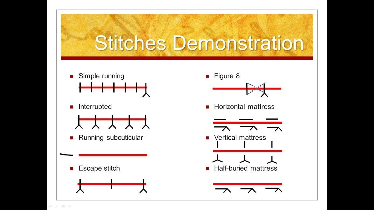 Types Of Stitches Just To Keep You In Stitches Suturing