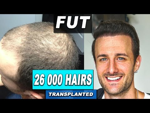 Hair Transplant Interview with David DiMuzio, Minoxidil, Finasteride & Hair Loss Prevention