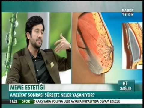 Meme Estetiği - Habertürk HT Sağlık 19.12.2015
