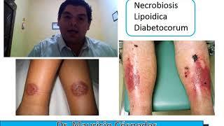 Diabetes por causadas enfermedades pie del