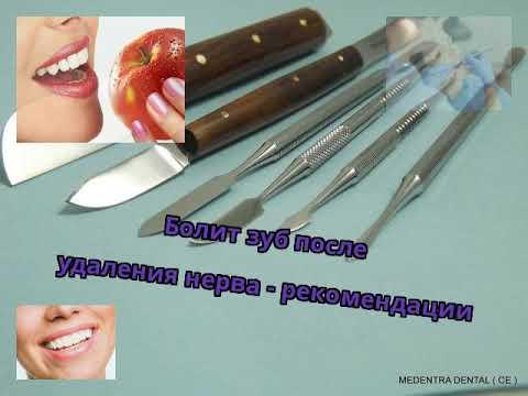 Болит зуб после посещения стоматолога