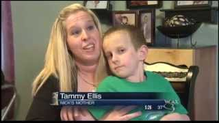 WCAX Peanut Allergy Treatment PKG 4/26/13