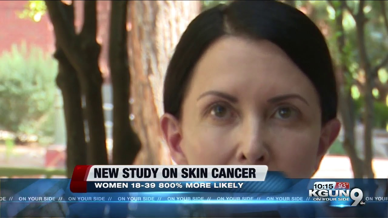 New Study Young Women 800 More Likely To Get Deadliest Form Of Skin Cancer Youtube