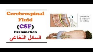 Clinical Chemistry - Cerebro - Spinal Fluid (CSF) Examination