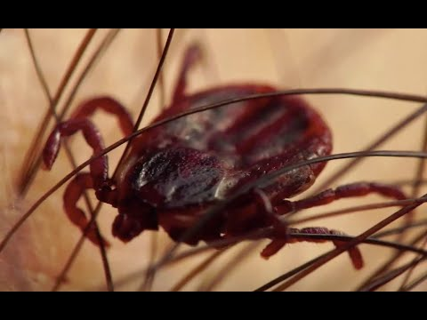 Island's sharp rise in Lyme prompts researchers to launch app to track ticks
