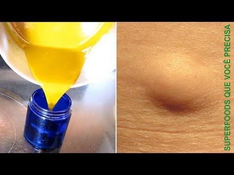 Vídeo Exame de tomografia