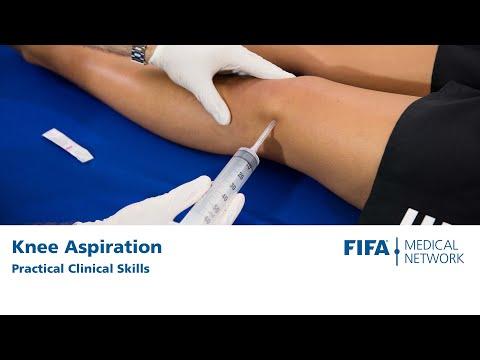 Knee Aspiration | Practical Clinical Skills