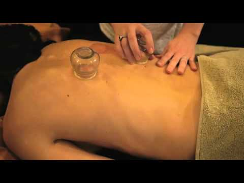 Kangzhu Professional Cupping Therapy Equipment