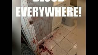 BLOOD EVERYWHERE! Man dies a brutal death - Boston trauma & crime scene cleanup company responds