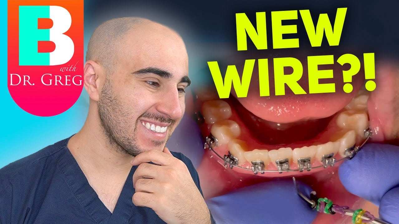 Download Braces Wire Tightening - Why & How Your Orthodontist Changes Your Braces Wires