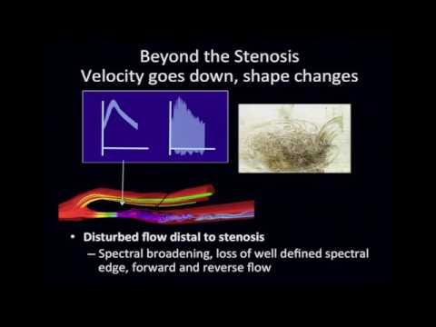 Peripheral Vascular Disease ultrasound