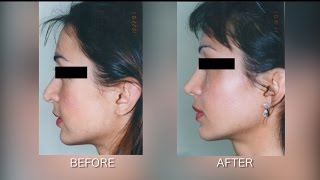 Fixing a Bad Rhinoplasty - Revision