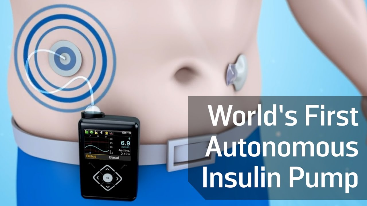 the world s first autonomous insulin pump youtube