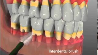 River Road Dental: Gingival Recession