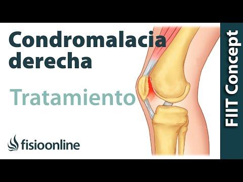 tratamiento de condromalacia rotuliana