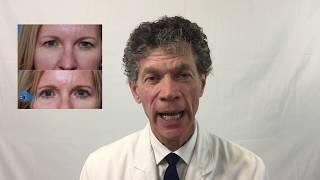 Eyelid surgery at Beraja Medical Institute