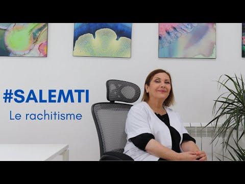 #SALEMTI : comment diagnostiquer un rachitisme ?