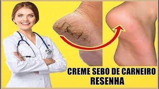Creme Sebo De Carneiro - Creme Sebo De Carneiro Onde Comprar ❓ É Bom❓ Para Que Serve ❓ RESENHA