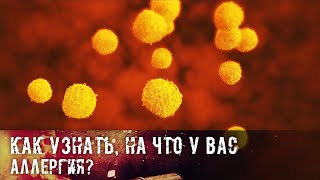 Как узнать на что у вас аллергия?