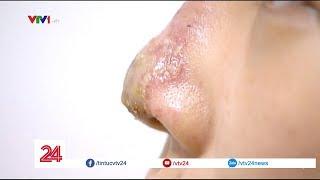 Cảnh báo: Mất mũi vì tiêm Filler làm đẹp sai cách - Tin Tức VTV24
