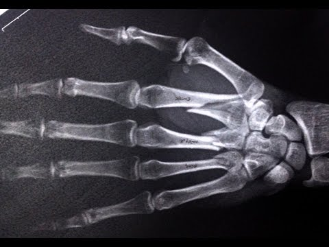 Fluoroscopic Closed Reduction & Percutaneous Pinning of Multiple Metacarpal Fractures