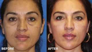 Eye Rejuvenation in San Diego - Eyelid Surgery