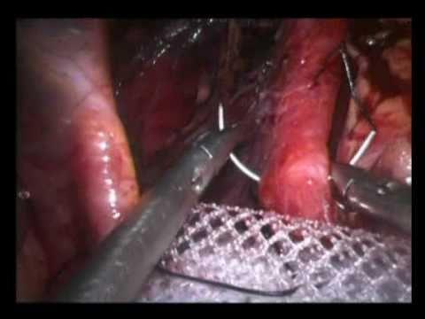 LAPAROMESH  - for hiatal hernia repair